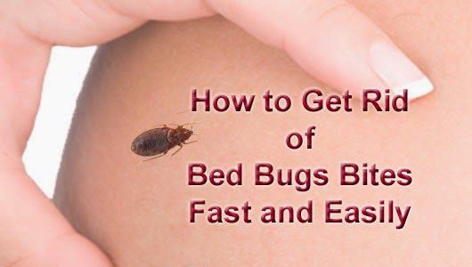 How to get rid of bed bug bites?